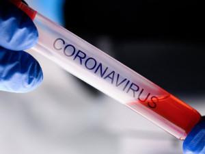 Všeobecná fakultní nemocnice hodlá přijmout tři pacienty z Francie s novým koronavirem